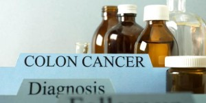 Signs-of-colon-cancer-attack